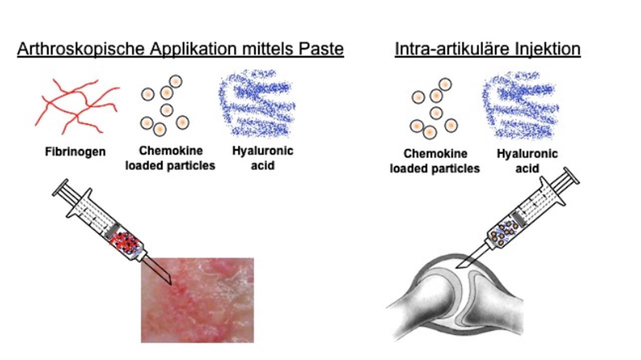Intra-artikuläre Hyaluronsäure bei der Behandlung der Arthrose des Karpometakarpal-Gelenkes